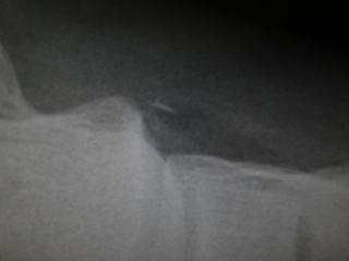 超音波断層撮影 - 超音波断層撮影の概要 - Weblio辞書